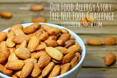 Our Food Allergy Story: Tree Nut Food Challenge!